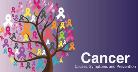 Cancer Causes, Symptoms and Prevention