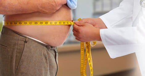 Obesity - Causes, Symptoms, Effects, and Prevention